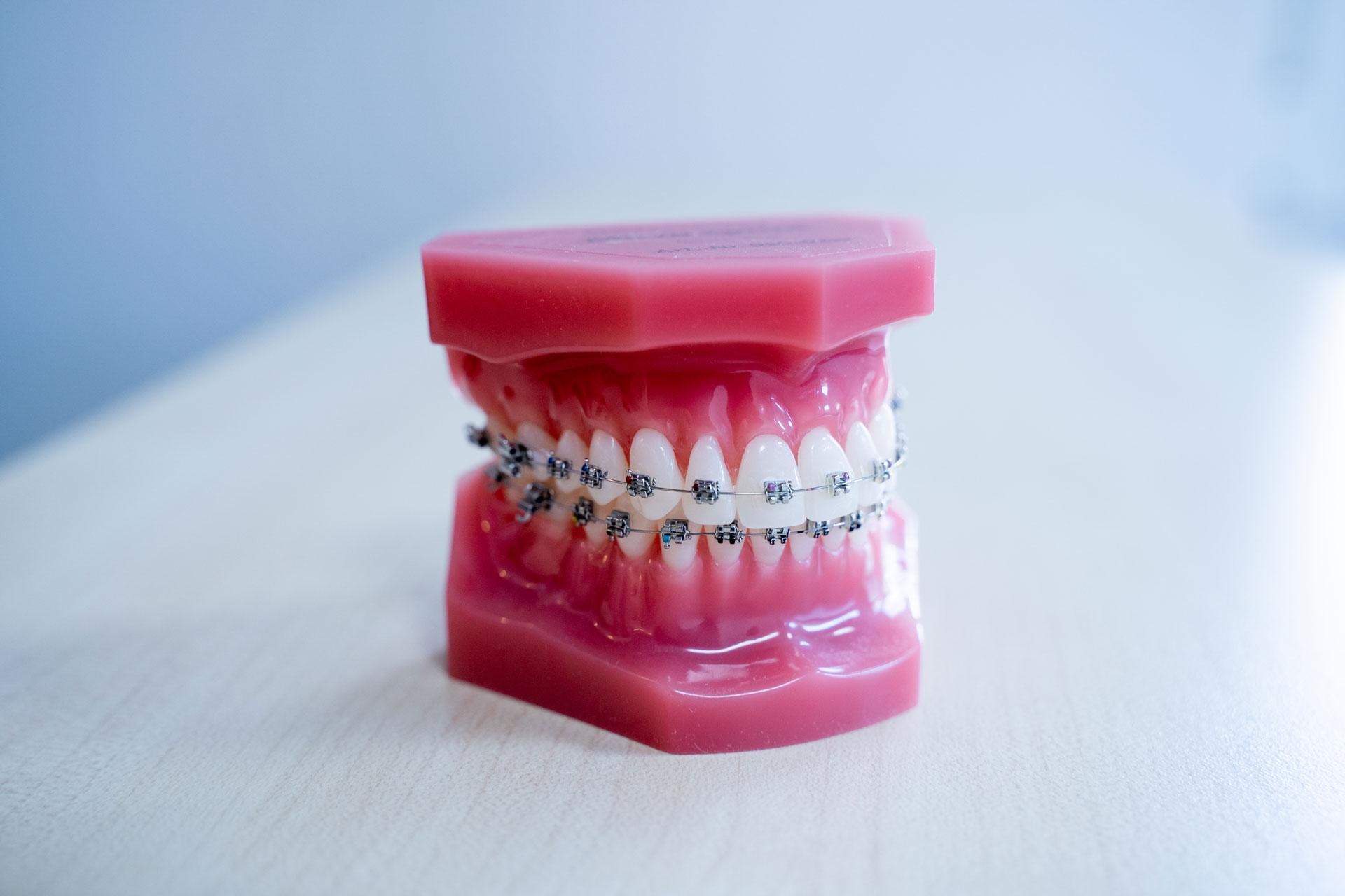 Zahnspangen-Behandlung